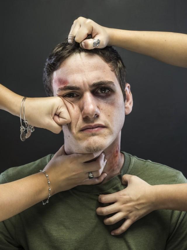 Abused man